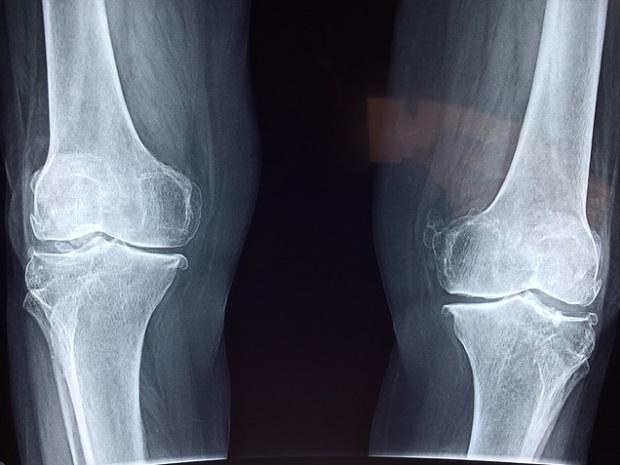 fluid în diagnosticul articulației genunchiului