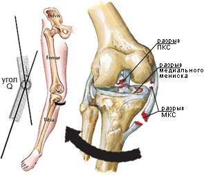 deformând artroza șoldului