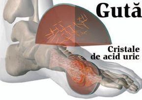tratament alternativ articular