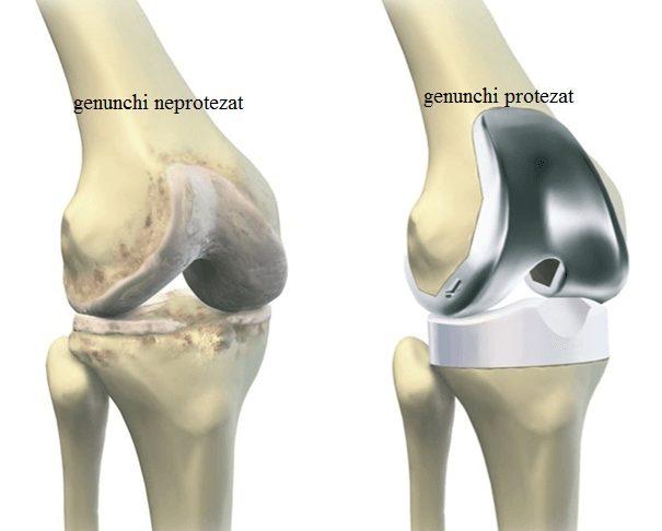 Proteza de genunchi - toate etapele acestei operatii   MedLife