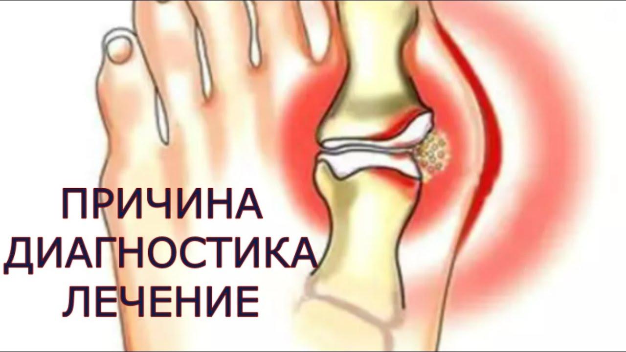 unguent de reparație a articulațiilor genunchiului leziuni la glezna piciorului