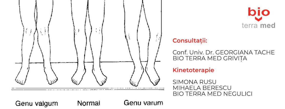 tratamentul homeopatiei gonartrozei genunchiului