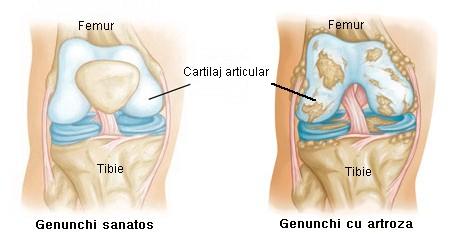 artroza vitaminelor genunchiului artroza deformantă post-traumatică a genunchiului 2 grade