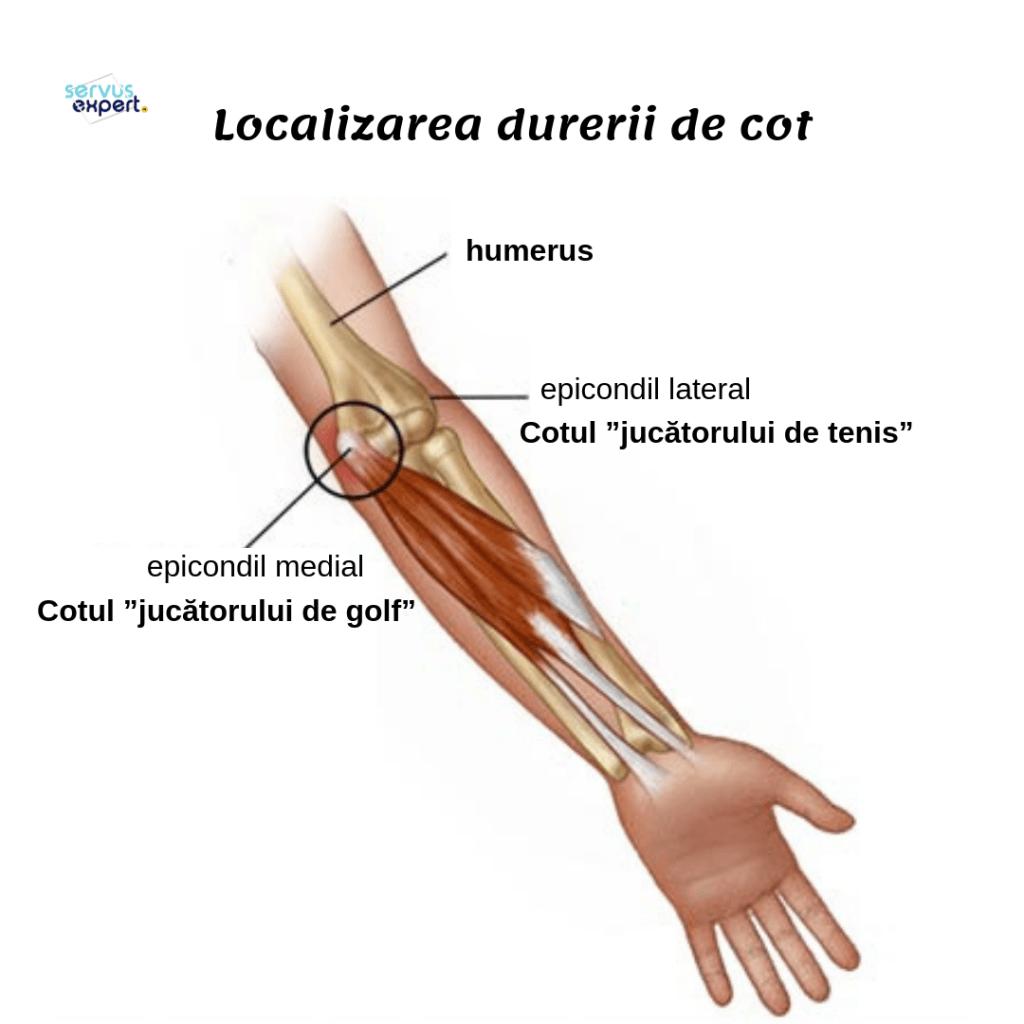 durere la nivelul articulației cotului și a antebrațului)