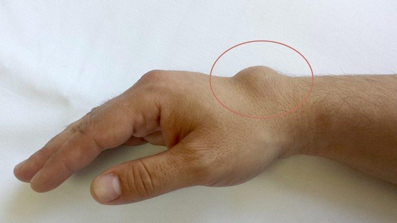 articulația încheieturii este umflată și dureroasă)