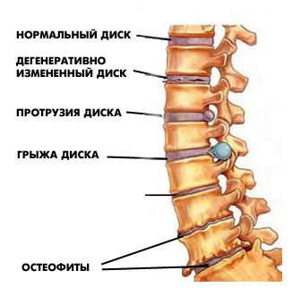 unguente pentru osteochondroza coloanei vertebrale