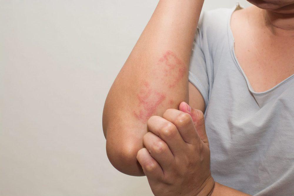 eczema pe artrita mâinii