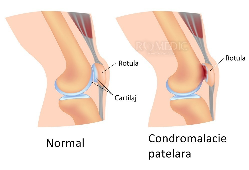 scoate o articulație a genunchiului)
