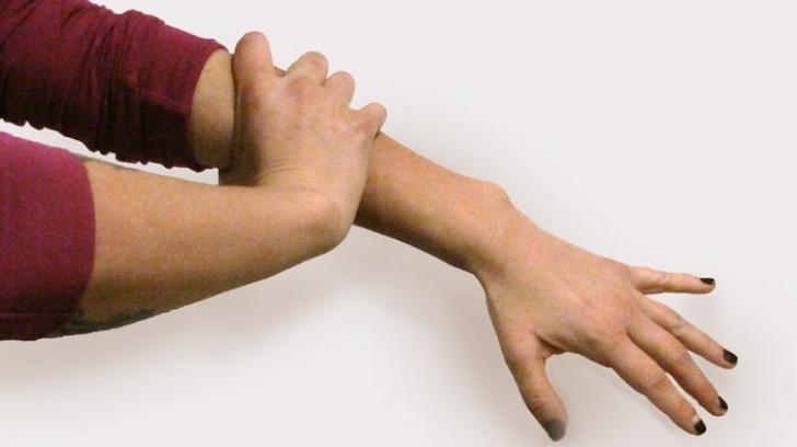 durere la mâna dreaptă în articulație
