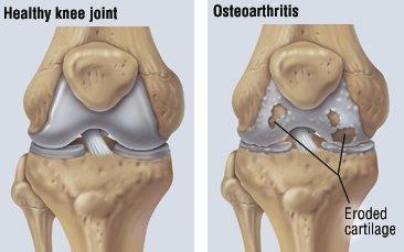 osteoartrita medicamentului articulației genunchiului)