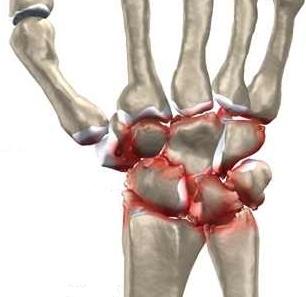 tratamentul unei articulații prolapsate a unei mâini)