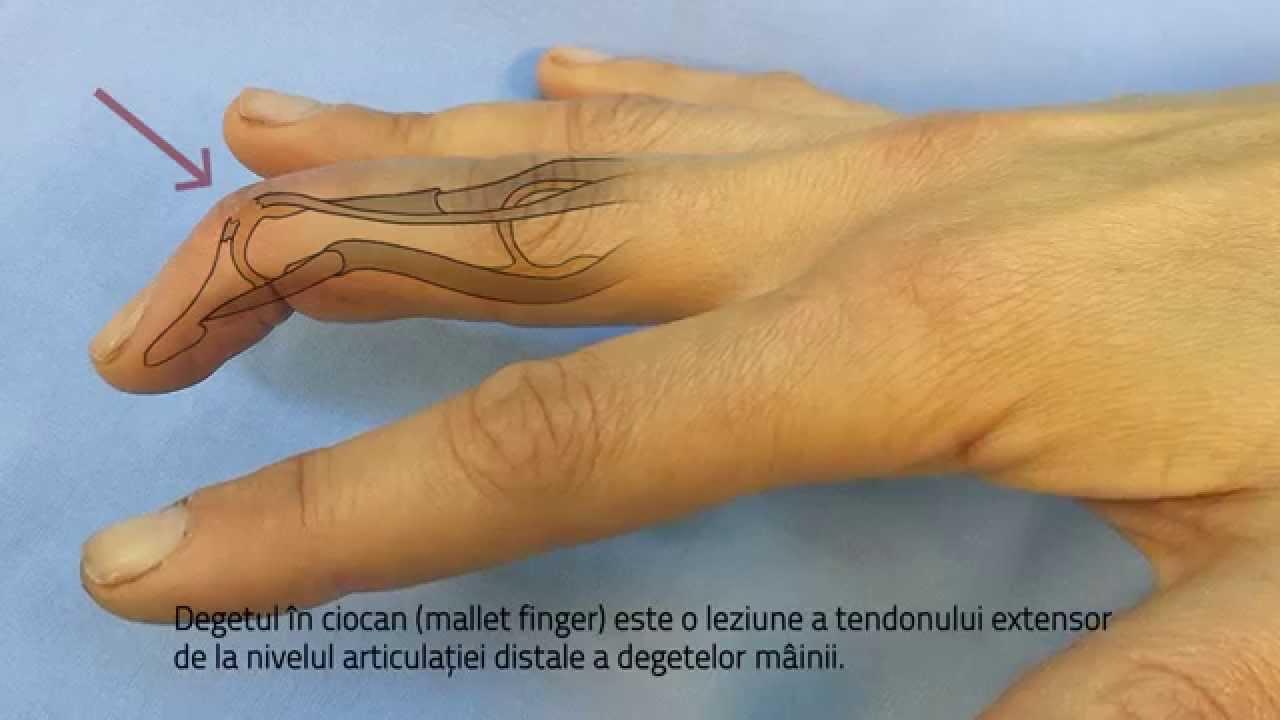 umflarea în articulația degetului)