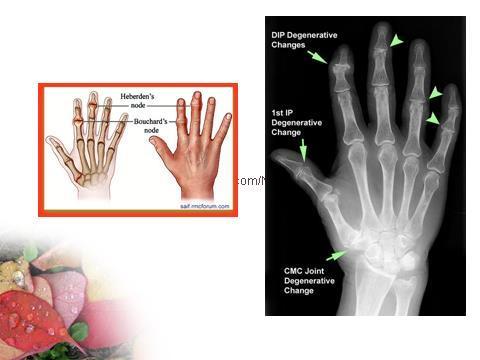 tratați articulațiile acasă cum se dezvoltă artroza articulară