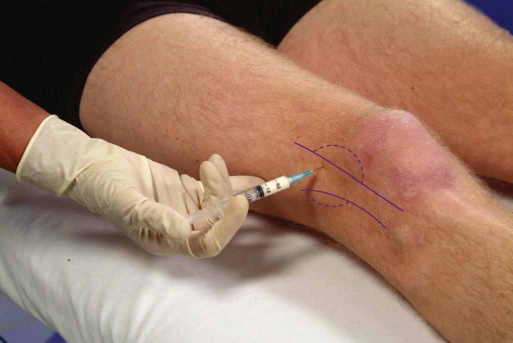 injecție de durere la genunchi)