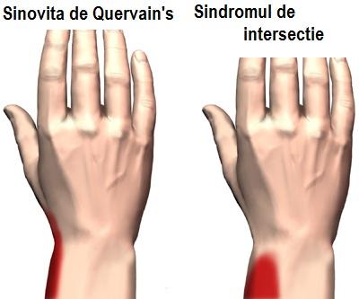 rănirea tendonului la încheietura mâinii
