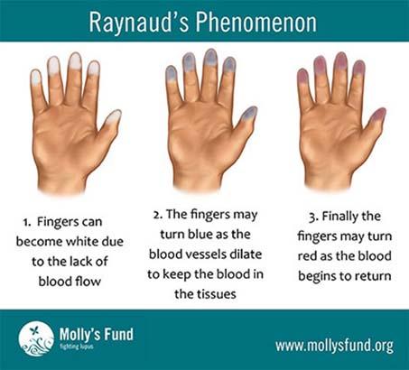 Boala și articulațiile lui Raynaud