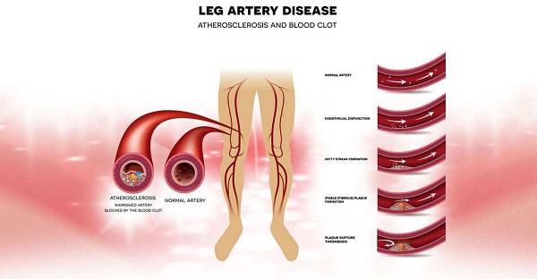 boala articulațiilor membrelor inferioare)