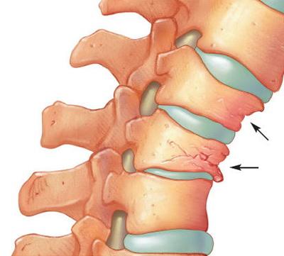 cum să tratezi artroza coloanei vertebrale cervicale)