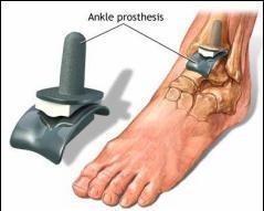 Primele semne ale artrozei gleznei. Cauze ale artritei glezne