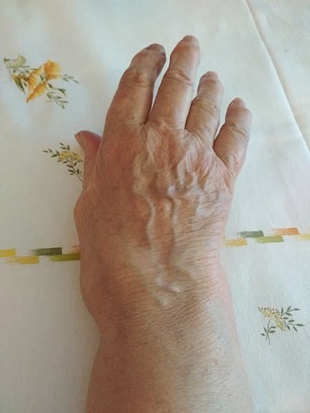 a fost tratată artrita reumatoidă anterioară osteochondroza unguentului coloanei vertebrale lombosacrale