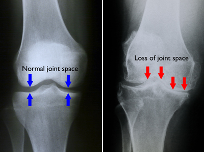 stadiul inițial de tratament pentru artroza genunchiului