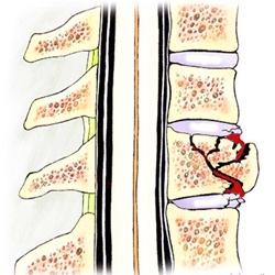 leziune articulară penetrantă