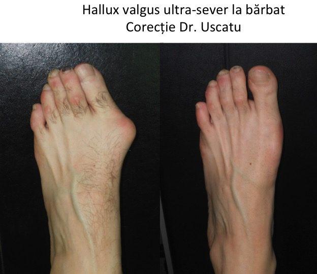 tratamentul genunchiului hallux valgus vitamine cu glucozamină și condroitină pentru om