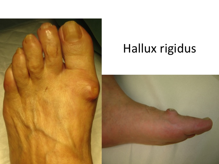 tratamentul artrozei piciorului fără intervenție chirurgicală