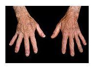 dureri articulare cu lupus eritematos)