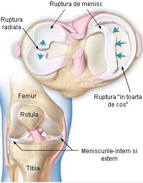 deteriorarea meniscului interior al articulației genunchiului stâng)