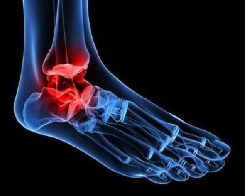 unguent pentru osteoartroza articulației gleznei
