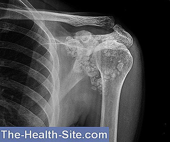 tratamentul osteoartrozei deformante a preparatelor articulațiilor umărului