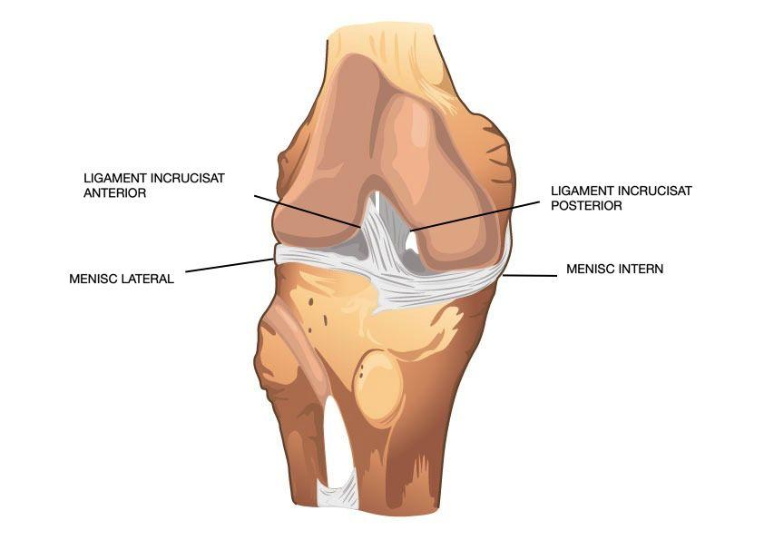 turnare din ipsos pentru leziuni la genunchi