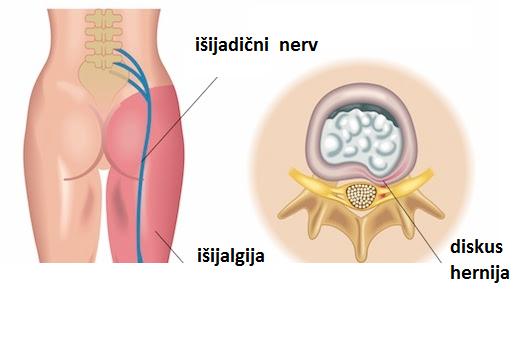 care este ruperea ligamentelor tratamentului articulației umărului