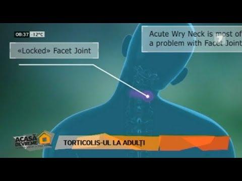 durere articulații fațete ale coloanei vertebrale condroprotectoare eficiente pentru artroza articulației genunchiului