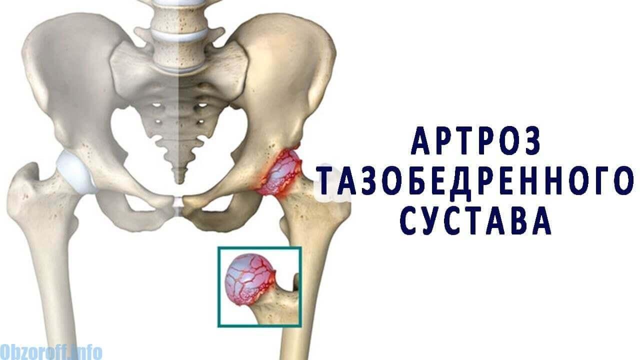 artroză și tratament termic)