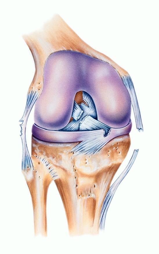 ligamenteza genunchiului care este acest tratament