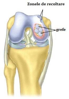 refacerea țesutului cartilaginos al articulației umărului