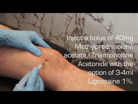 antiinflamatoare steroizi pentru tratamentul articulațiilor)