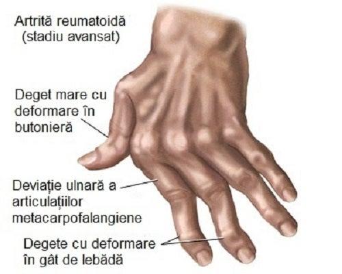 artrita reumatoidă a falangelor degetelor