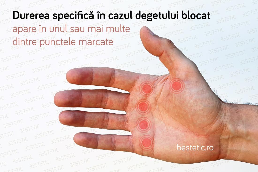 durere acută în articulația palmei)
