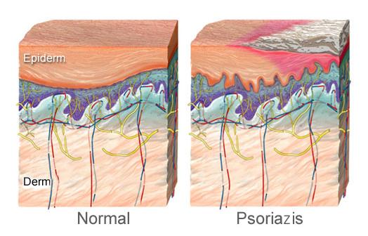 Pete pe piele: Tipuri, cauze si remedii   centru-respiro.ro