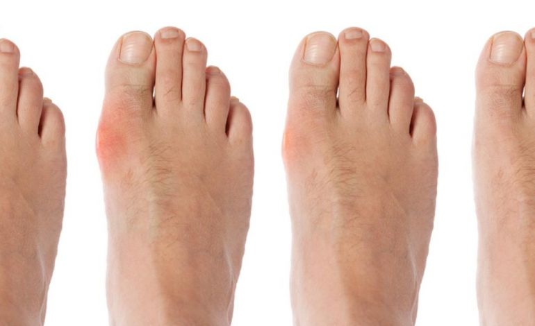 inflamația articulațiilor degetului de la picioare