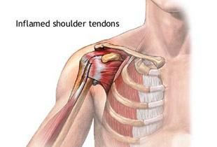 durere în articulația umărului sub braț