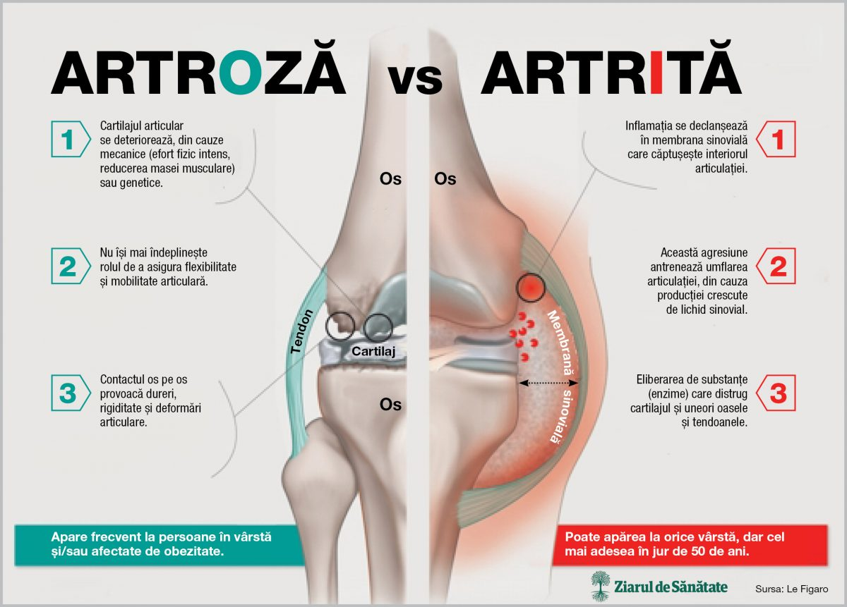 dureri articulare cu artrita)