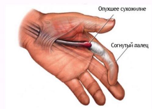 articulațiile degetelor se îndoaie prost și doare)