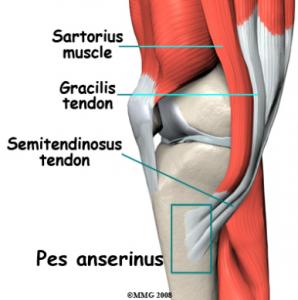întărirea articulațiilor și ligamentelor genunchiului