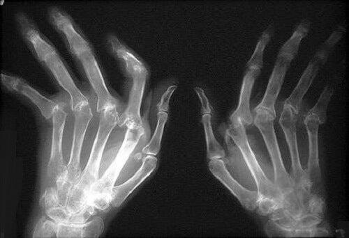 artroza și tratamentul artritei reumatoide