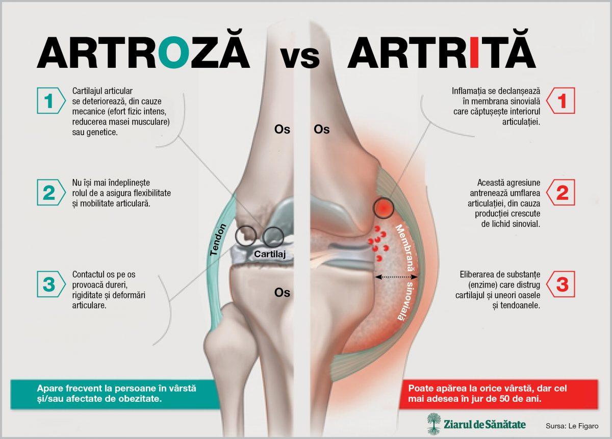 artroză și artrită mâini