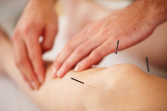 Ce rol are acupunctura in gonartroza